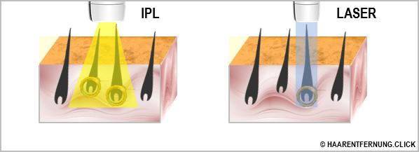 IPL Geräte Test